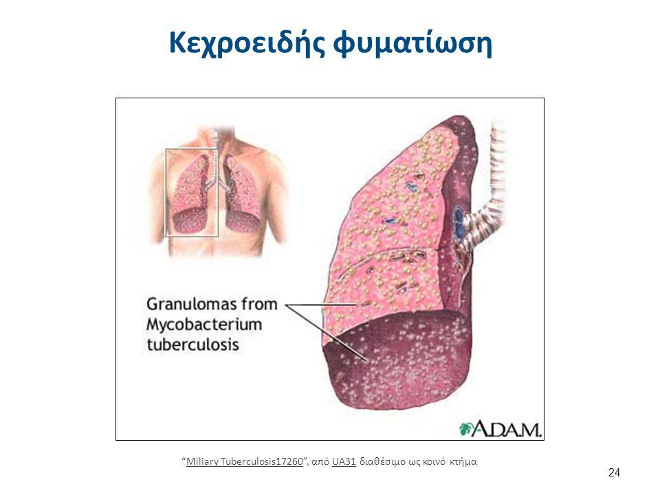 Σπηλαιώδης φυματίωση tuberculosispictures.org tuberculosispictures.org