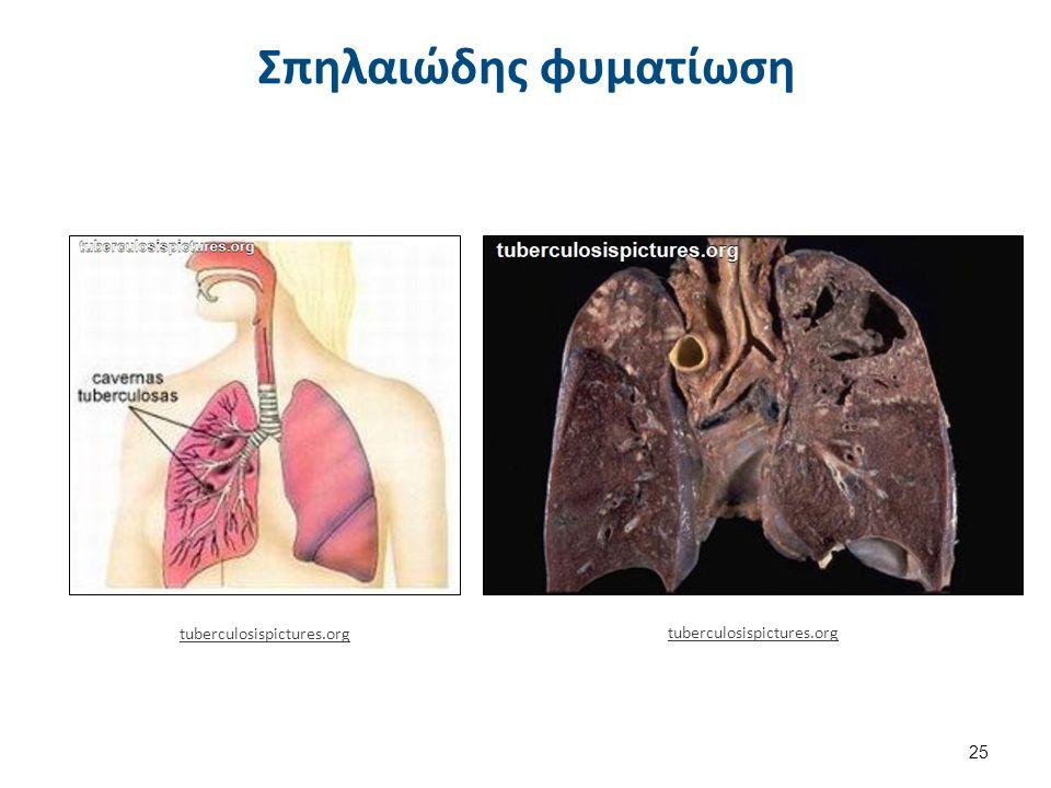 Εικόνες φυματίωσης tuberculosispictures.org