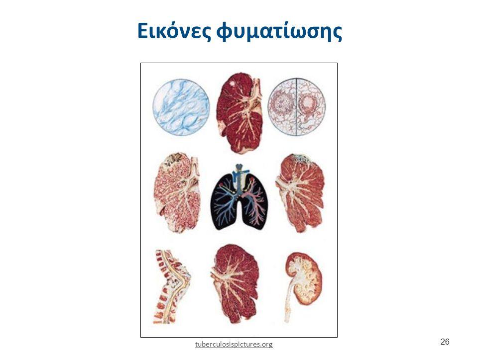 Συμπτώματα φυματίωσης