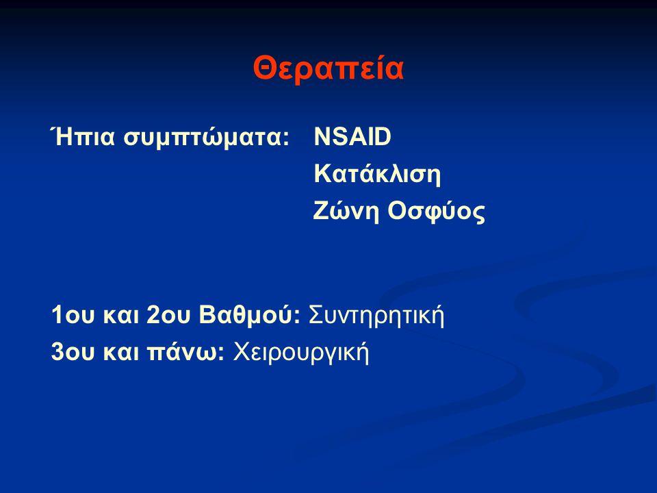 Θεραπεία Ήπια συμπτώματα: NSAID Κατάκλιση Ζώνη Οσφύος