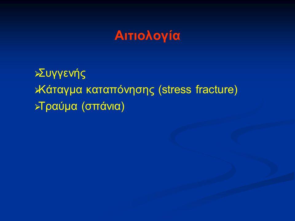 Αιτιολογία Συγγενής Κάταγμα καταπόνησης (stress fracture)