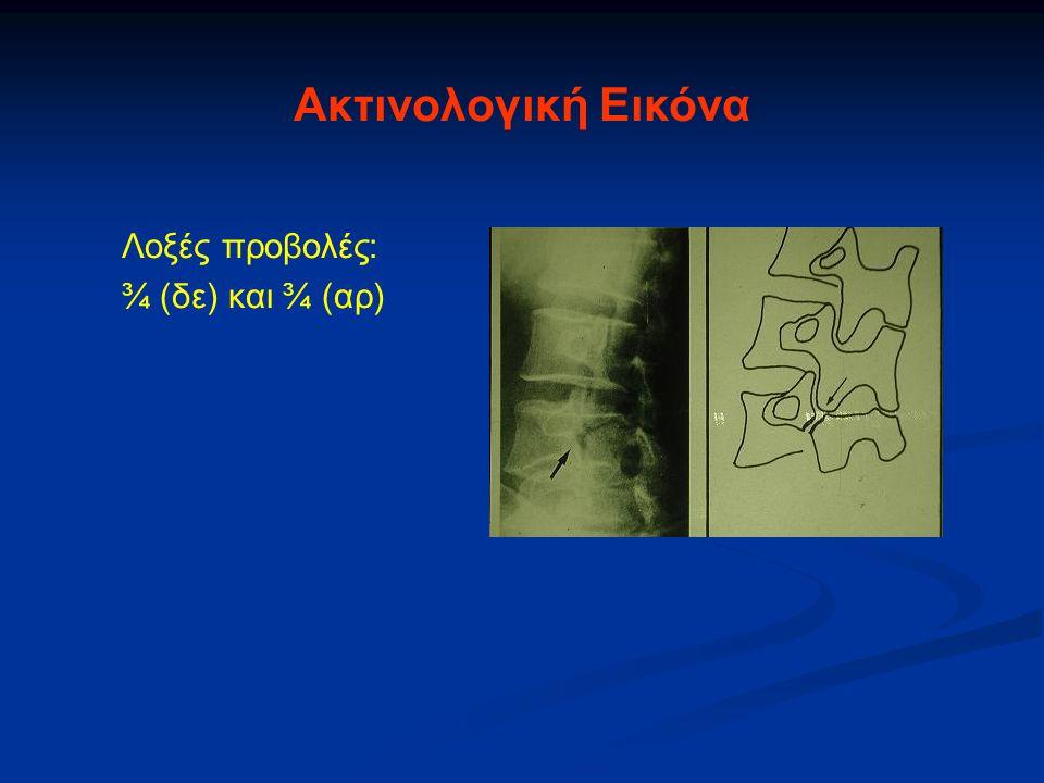 Ακτινολογική Εικόνα Λοξές προβολές: ¾ (δε) και ¾ (αρ)