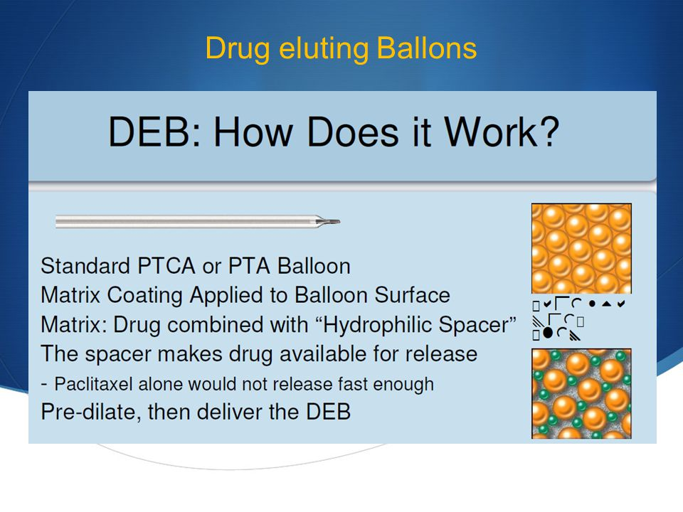 Drug eluting Ballons