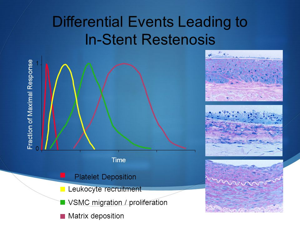 Differential Events Leading to In-Stent Restenosis