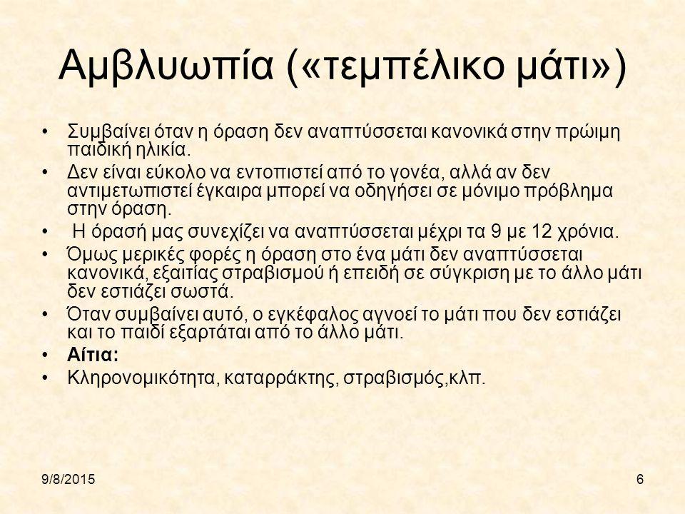 Αμβλυωπία («τεμπέλικο μάτι»)
