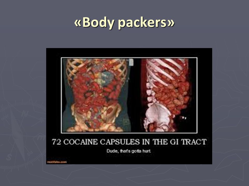 «Body packers»