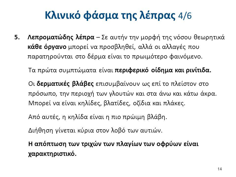 Κλινικό φάσμα της λέπρας 5/6