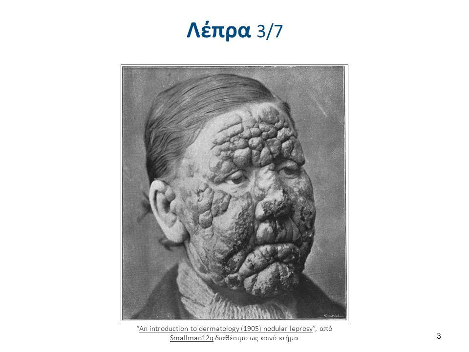Λέπρα 4/7 Leprosy thigh demarcated cutaneous lesions , από Balthazaar διαθέσιμο ως κοινό κτήμα.