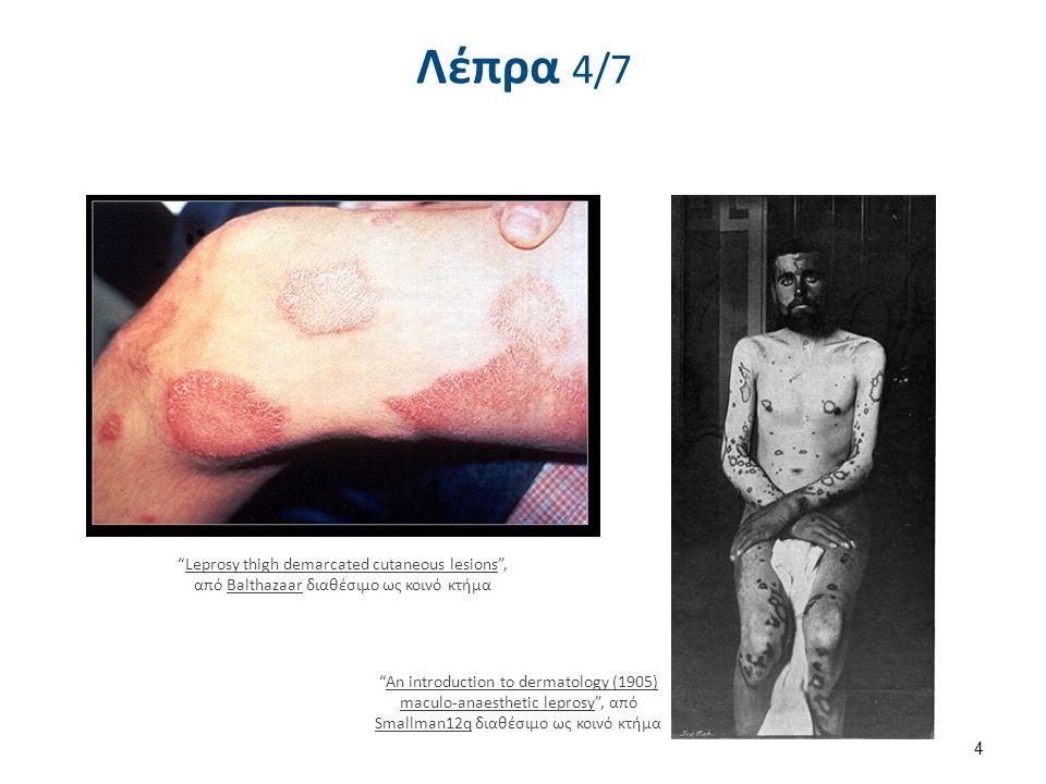 Λέπρα 5/7 Leprosy deformities hands , από B.jehle διαθέσιμο με άδεια CC BY-SA 3.0
