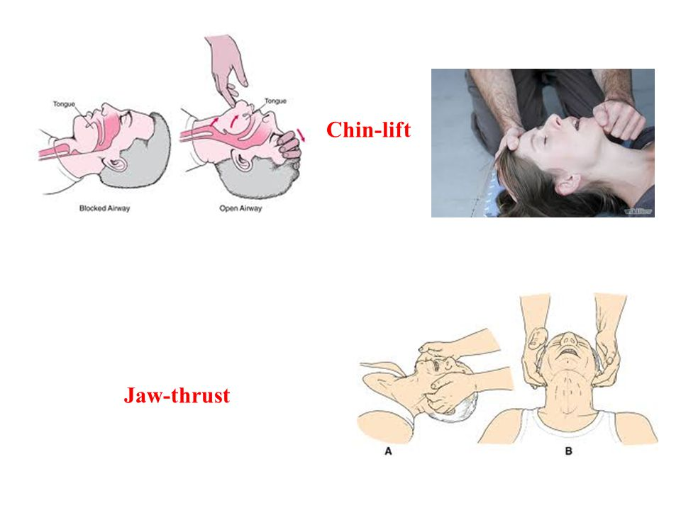 Chin-lift Jaw-thrust