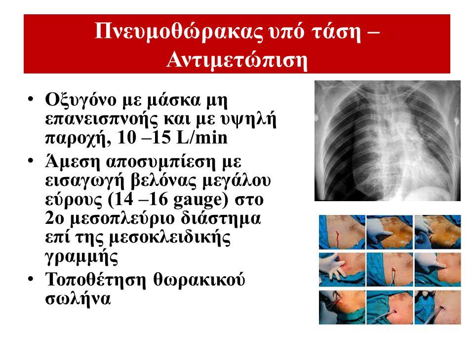 Πνευμοθώρακας υπό τάση – Αντιμετώπιση