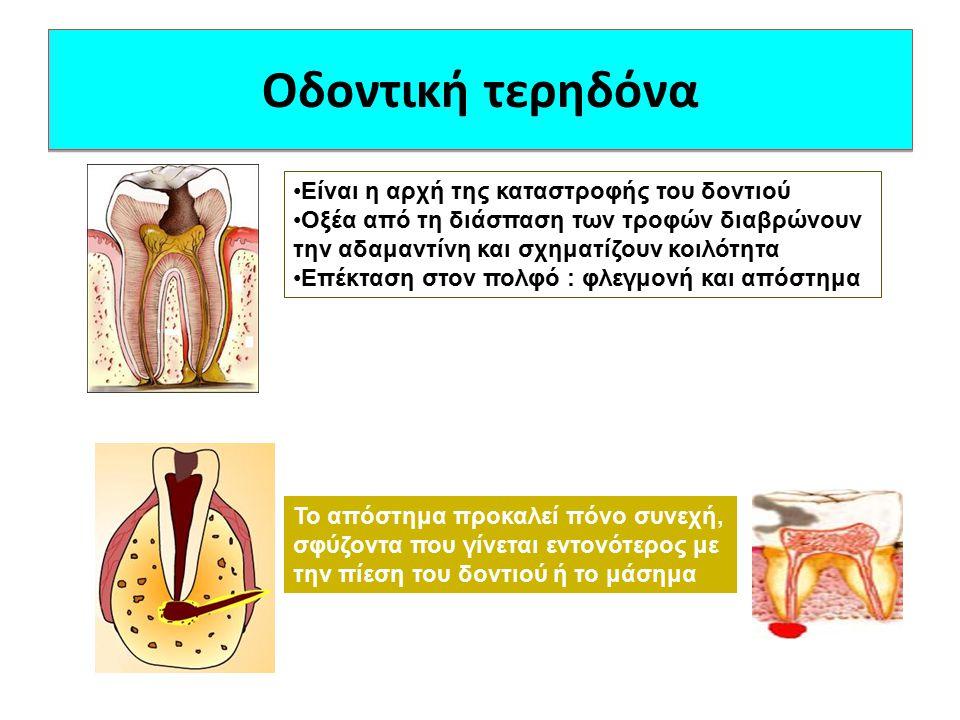 Οδοντική τερηδόνα Είναι η αρχή της καταστροφής του δοντιού