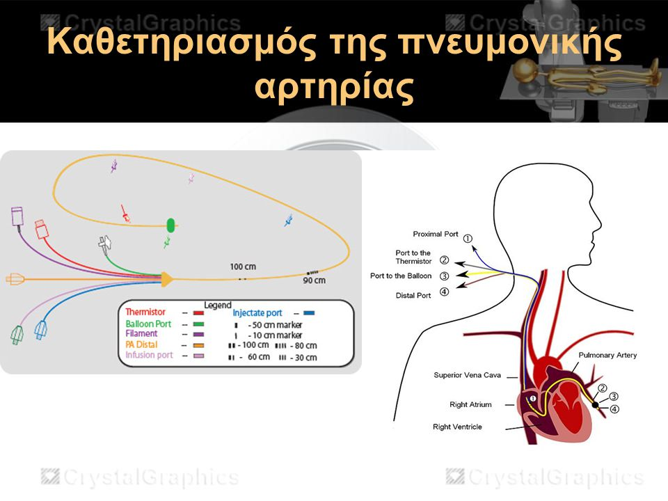 Καθετηριασμός της πνευμονικής αρτηρίας