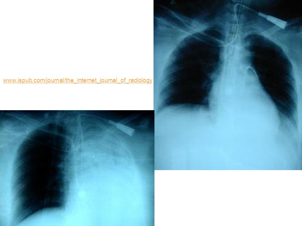 www.ispub.com/journal/the_internet_journal_of_radiology
