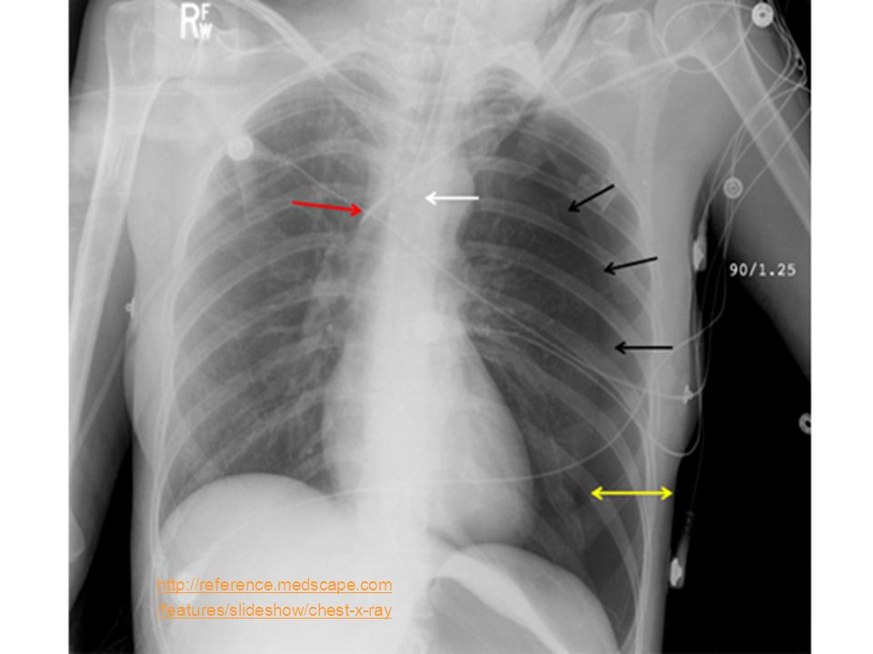 http://reference.medscape.com/features/slideshow/chest-x-ray
