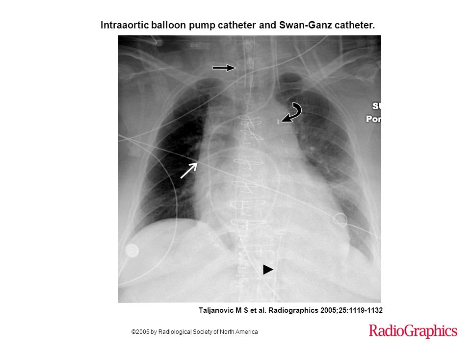 Intraaortic balloon pump catheter and Swan-Ganz catheter.