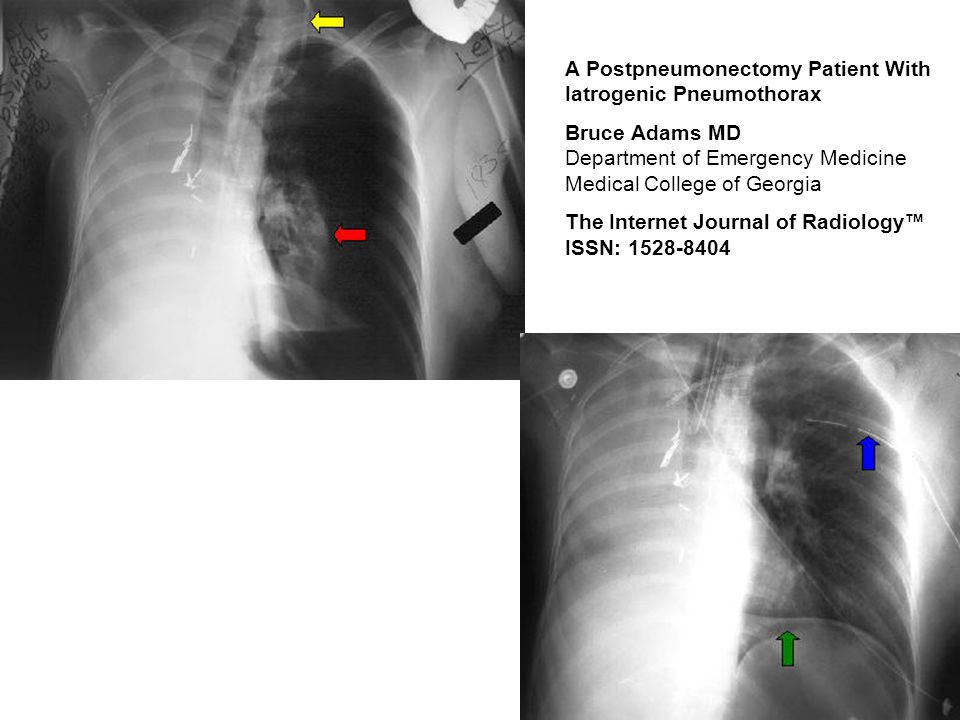 A Postpneumonectomy Patient With Iatrogenic Pneumothorax