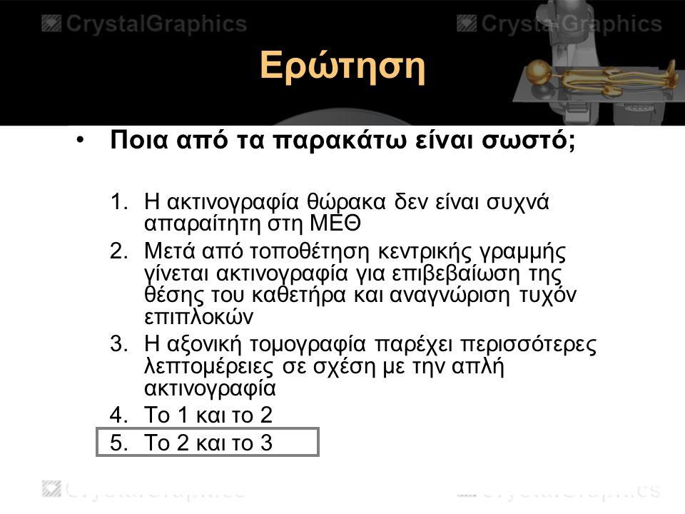 Ερώτηση Ποια από τα παρακάτω είναι σωστό;
