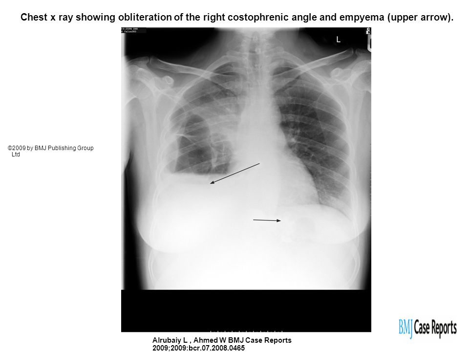 Chest x ray showing obliteration of the right costophrenic angle and empyema (upper arrow).