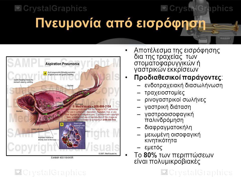 Πνευμονία από εισρόφηση