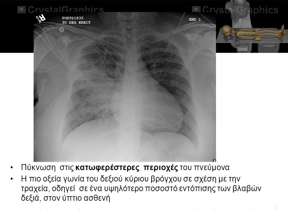 Πύκνωση στις κατωφερέστερες περιοχές του πνεύμονα
