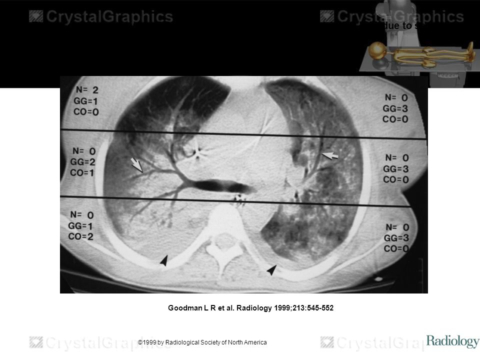 Thorax grading system at CT in a 23-year-old woman who had ARDS EXP due to sepsis.
