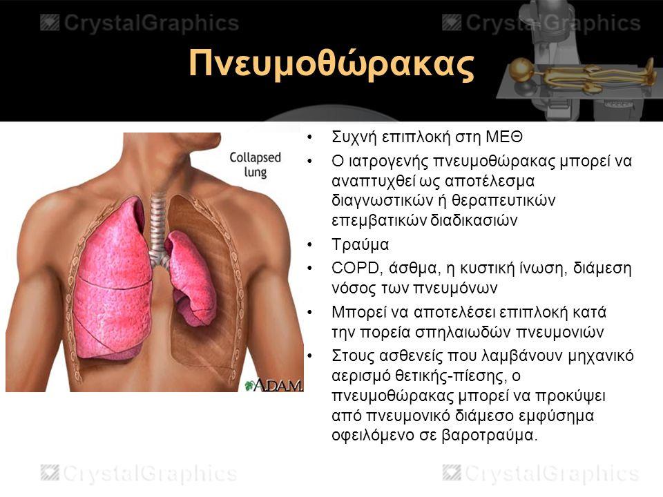 Πνευμοθώρακας Συχνή επιπλοκή στη ΜΕΘ
