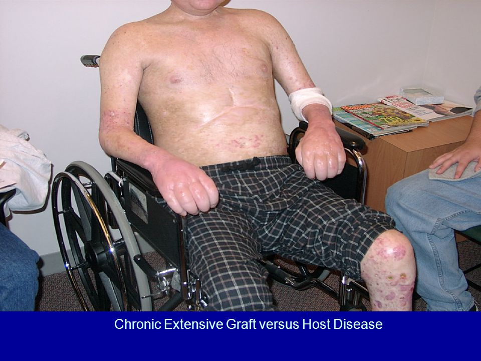 Chronic Extensive Graft versus Host Disease