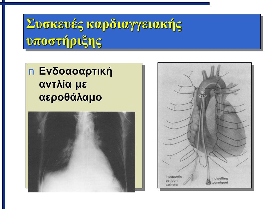 Συσκευές καρδιαγγειακής υποστήριξης