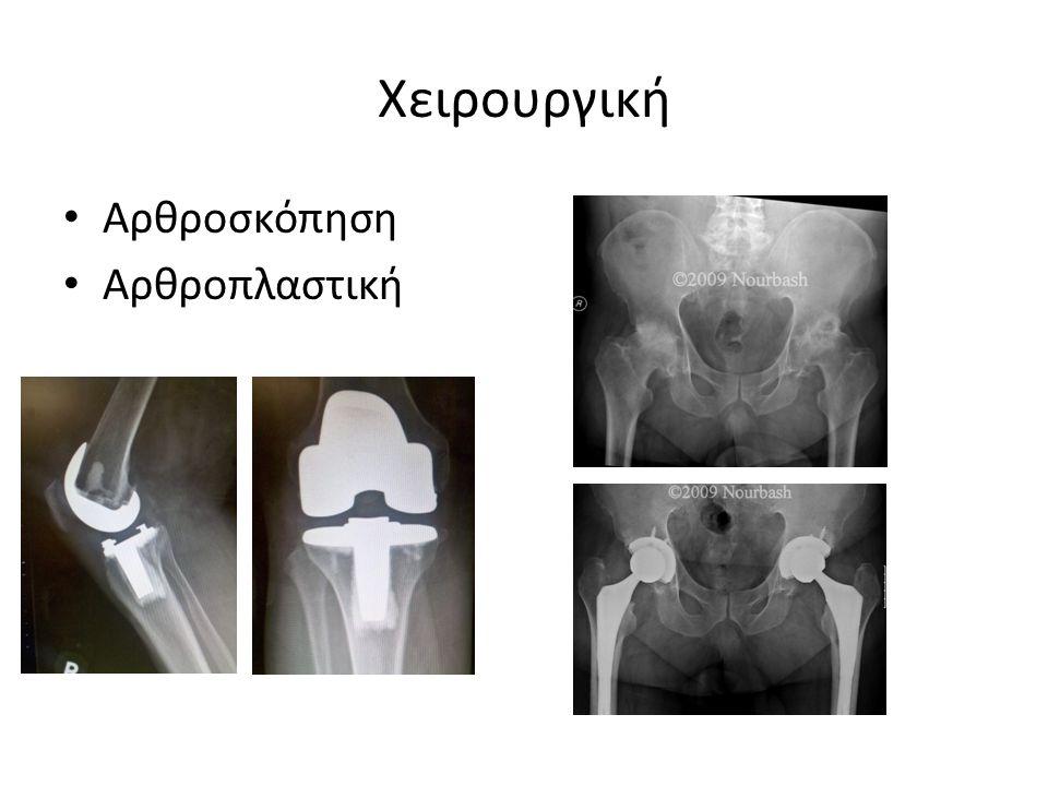 Χειρουργική Αρθροσκόπηση Αρθροπλαστική