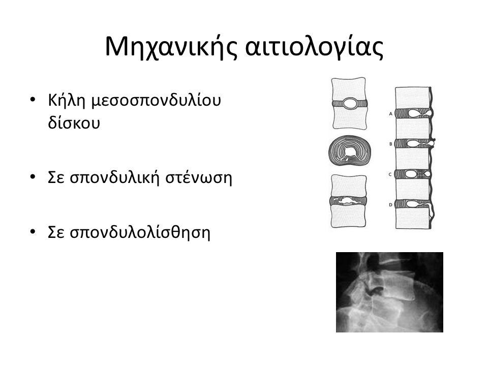 Μηχανικής αιτιολογίας