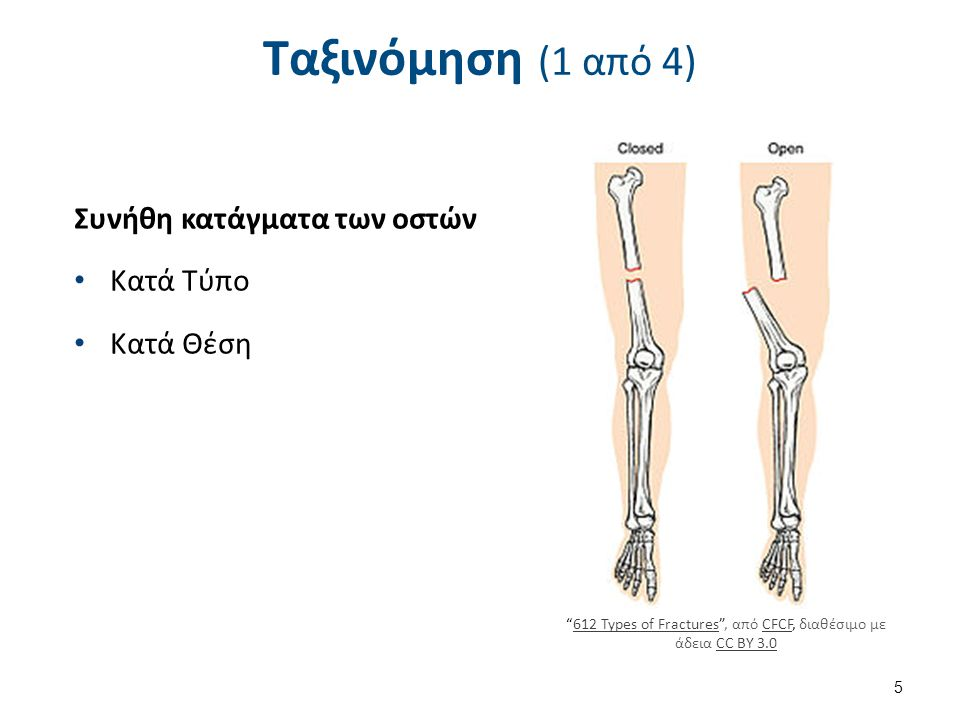 612 Types of Fractures , από CFCF, διαθέσιμο με άδεια CC BY 3.0