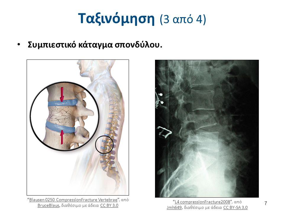 Ταξινόμηση (4 από 4) Πλήρη: αφορούν το σύνολο του πάχους των οστών,