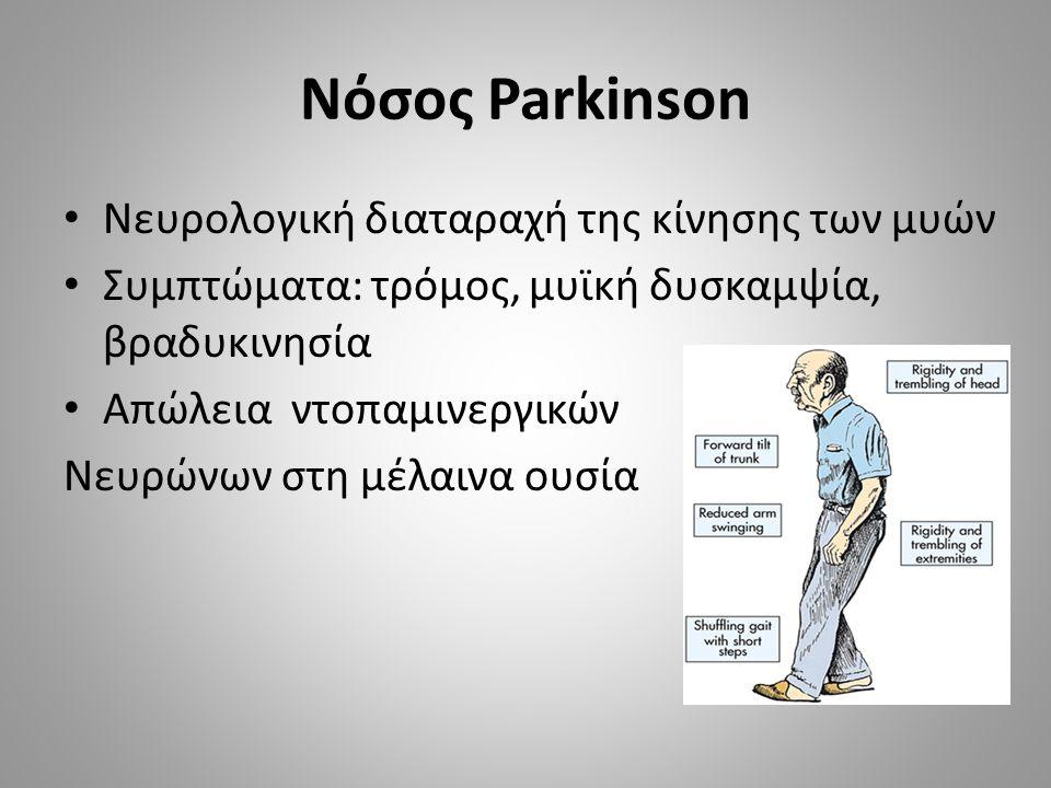 Νόσος Parkinson Νευρολογική διαταραχή της κίνησης των μυών