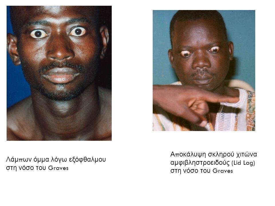 Αποκάλυψη σκληρού χιτώνα αμφιβληστροειδούς (Lid Lag) στη νόσο του Graves