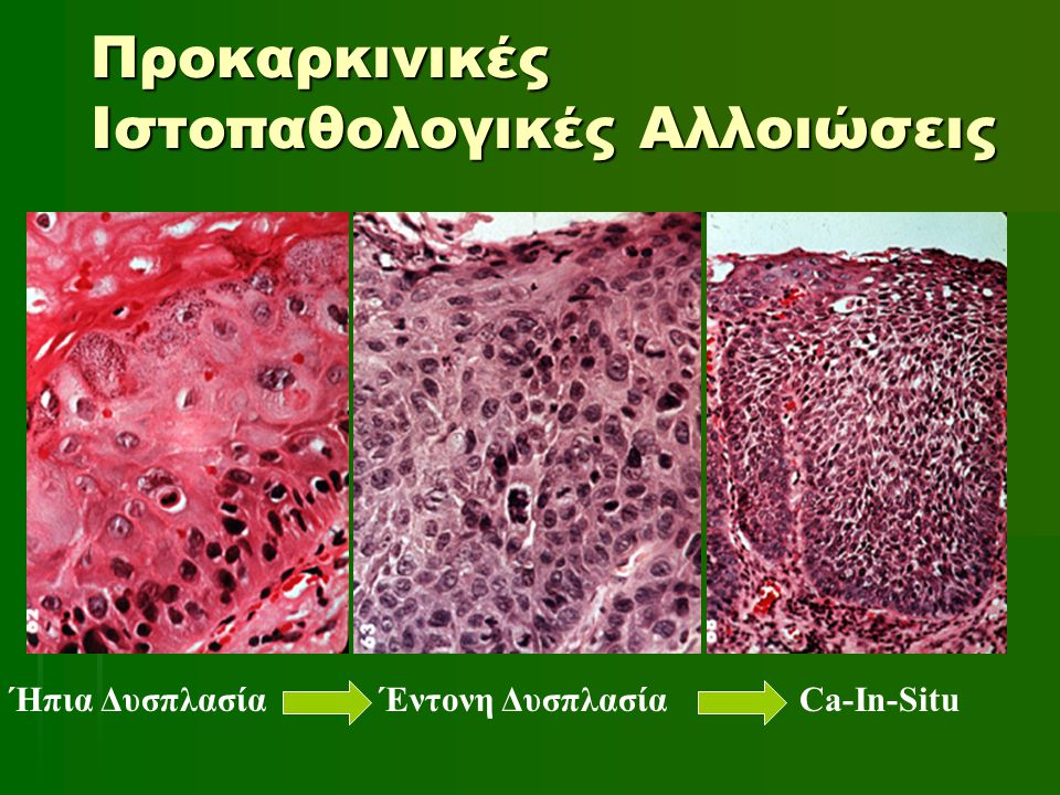 Προκαρκινικές Ιστοπαθολογικές Αλλοιώσεις