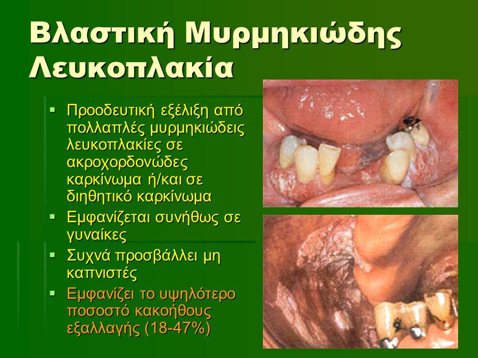 Βλαστική Μυρμηκιώδης Λευκοπλακία