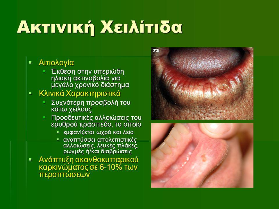 Ακτινική Χειλίτιδα Αιτιολογία Κλινικά Χαρακτηριστικά