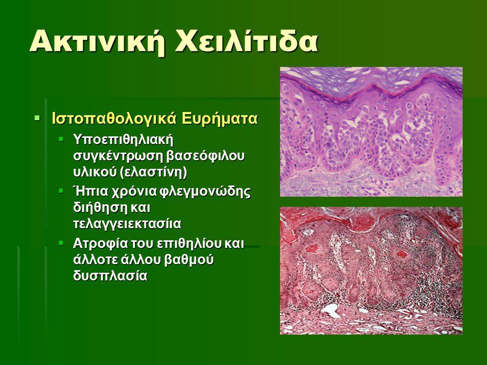 Ακτινική Χειλίτιδα Ιστοπαθολογικά Ευρήματα