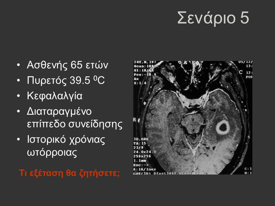 Σενάριο 5 Ασθενής 65 ετών Πυρετός 39.5 0C Κεφαλαλγία