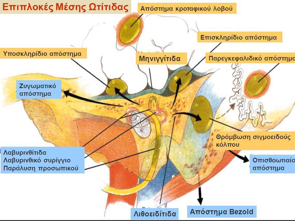 Επιπλοκές Μέσης Ωτίτιδας