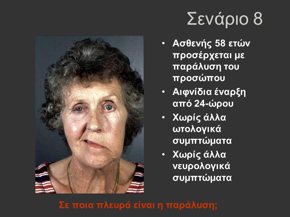 Σενάριο 8 Ασθενής 58 ετών προσέρχεται με παράλυση του προσώπου