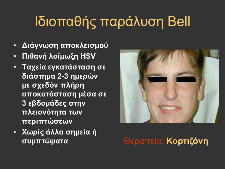 Ιδιοπαθής παράλυση Bell