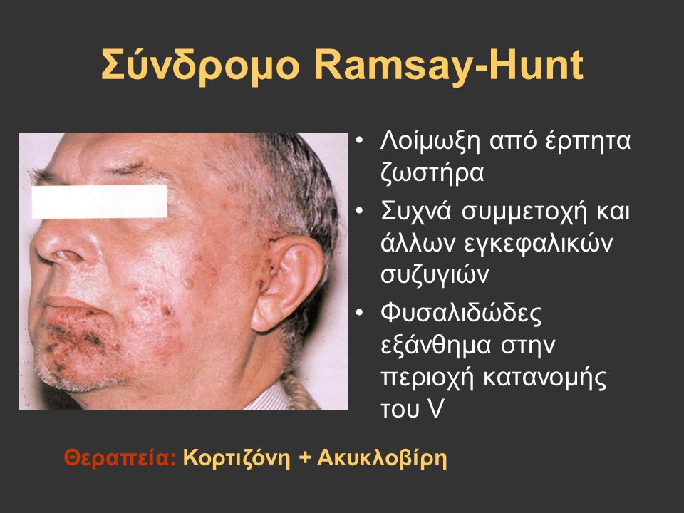Σύνδρομο Ramsay-Hunt Λοίμωξη από έρπητα ζωστήρα