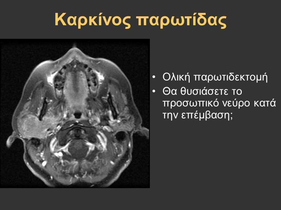Καρκίνος παρωτίδας Ολική παρωτιδεκτομή