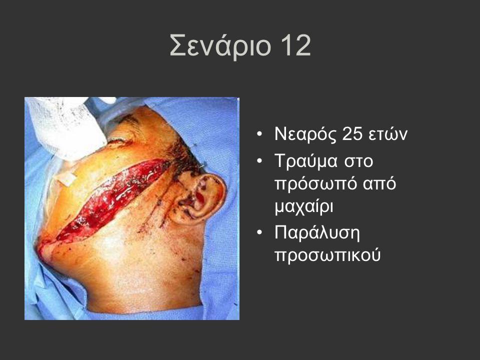 Σενάριο 12 Νεαρός 25 ετών Τραύμα στο πρόσωπό από μαχαίρι