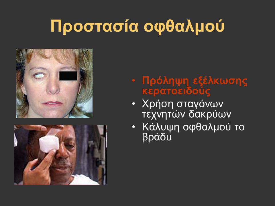 Προστασία οφθαλμού Πρόληψη εξέλκωσης κερατοειδούς
