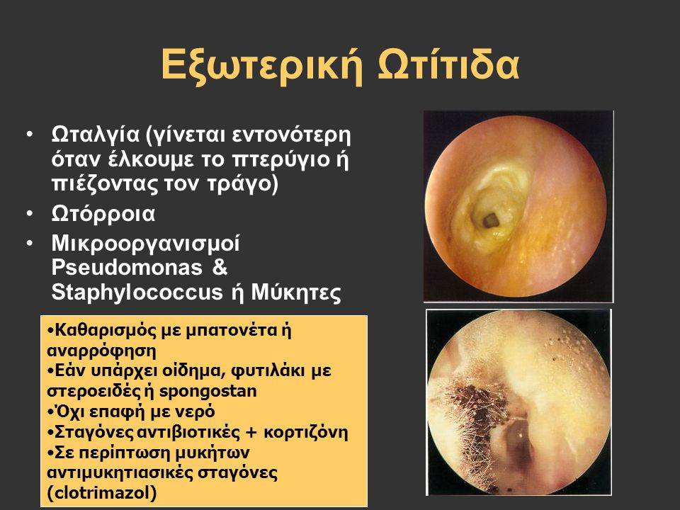 Εξωτερική Ωτίτιδα Ωταλγία (γίνεται εντονότερη όταν έλκουμε το πτερύγιο ή πιέζοντας τον τράγο) Ωτόρροια.