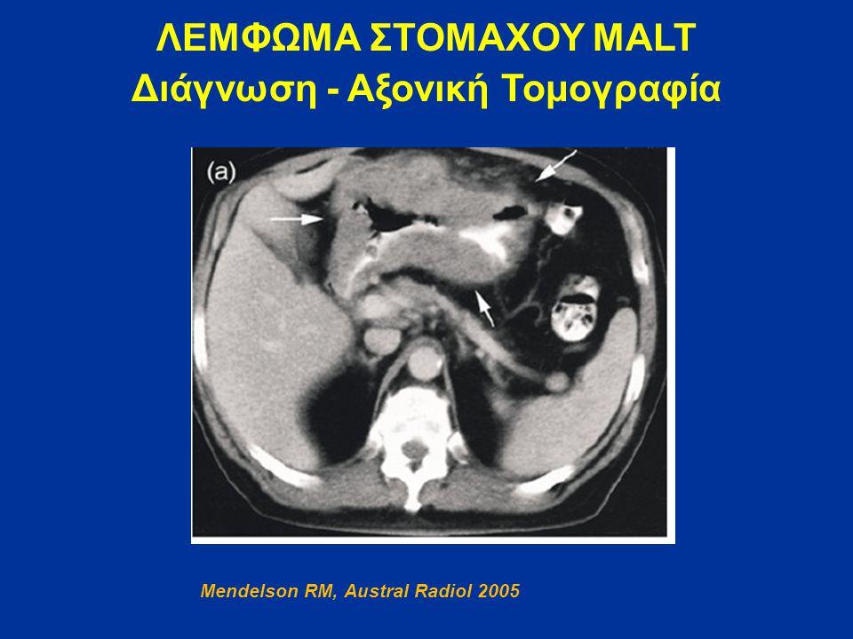 Διάγνωση - Αξονική Τομογραφία