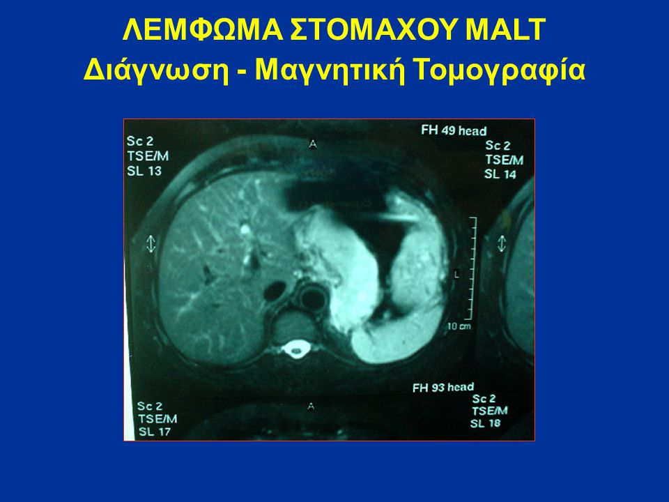 Διάγνωση - Μαγνητική Τομογραφία